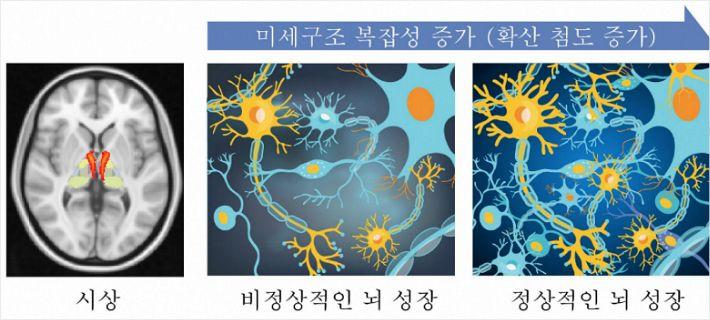 """""""미숙한 뇌 발달이 조현병 부른다"""""""