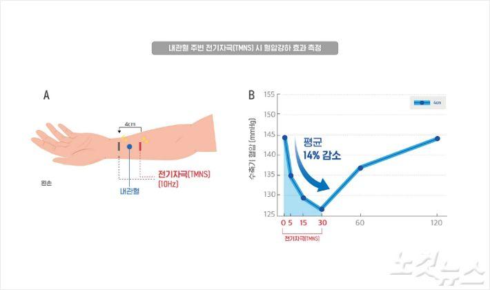 약물투여 없이 혈 자리 전기 자극만으로 고혈압 개선