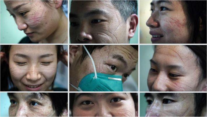 [영상] '中 코로나19 위기 속 감동의 순간'